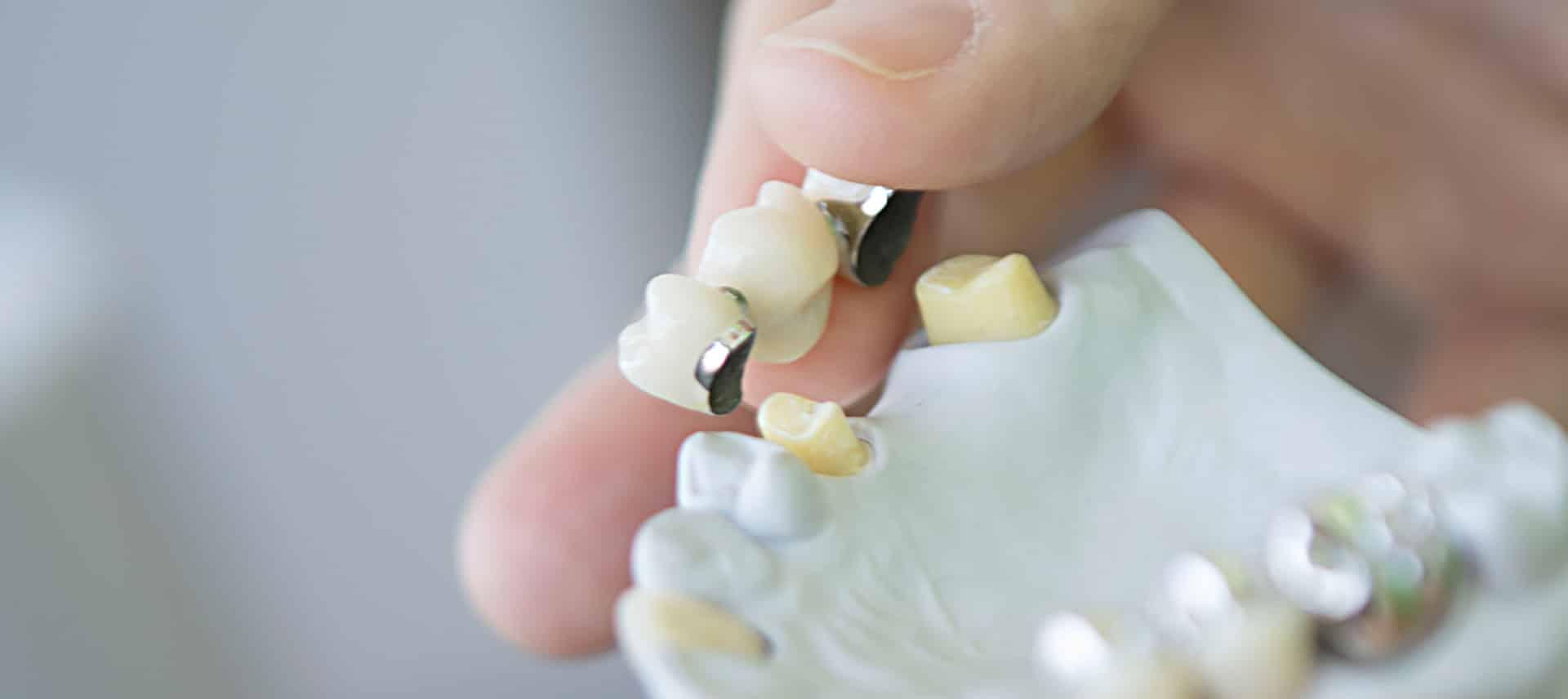 ZZZW Zahnprothesen - Herausnehmbarer Zahnersatz für vielfältigste Anforderungen.