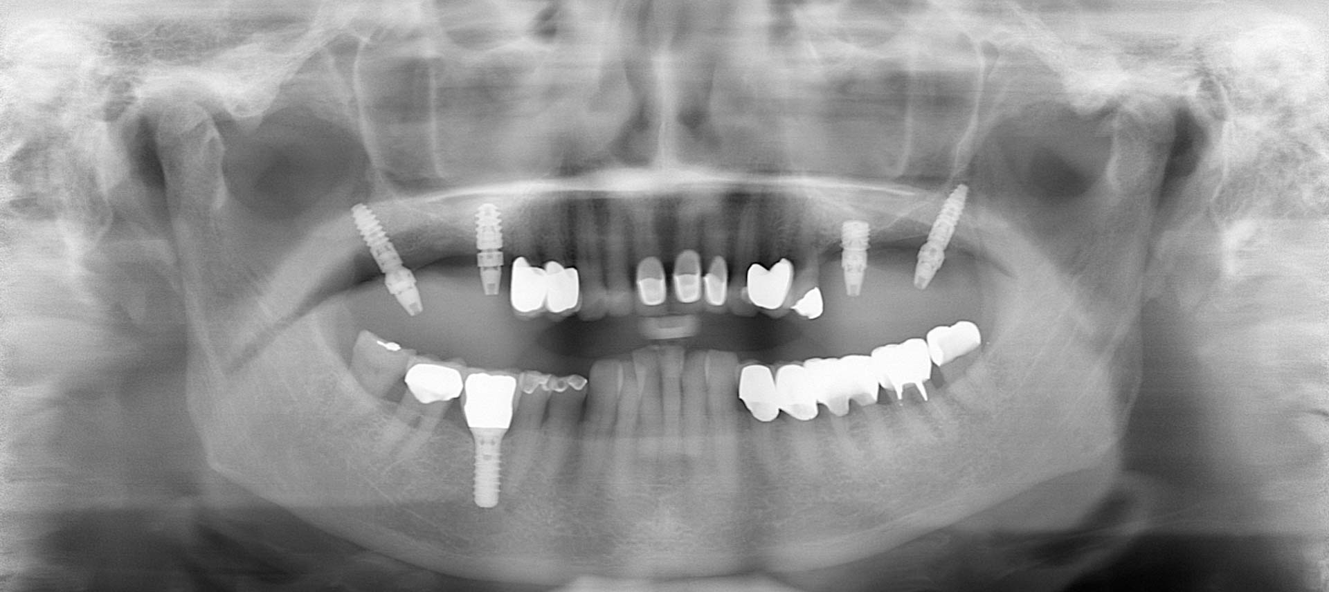 ZZZW – Minivalinvasive Implantate im Oberkiefer